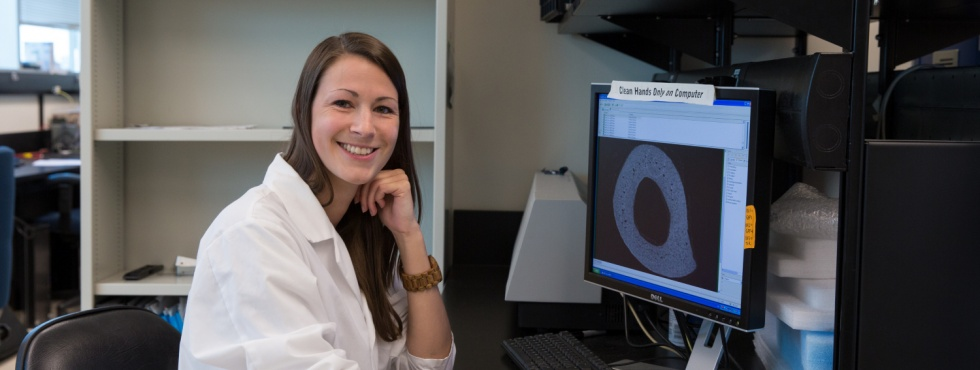 Studying costly and common bone disease - Killam scholarship winner Haley Britz looks for clues about osteoporosis in the microarchitecture of bones